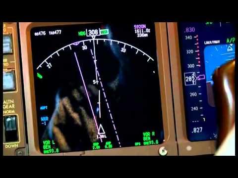 Closeup Photo of Strategic Lateral Offset Procedure